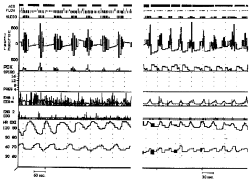 Figure 1: Two examples of polysomnographic findings